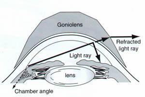 Hidden-Anterior-Chamber-Angle