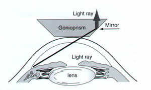 Indirect-gonioscopy