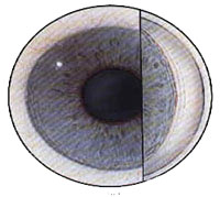 Primary-Open-Angle-Glaucoma-