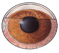 acute-angle-closure-glaucoma