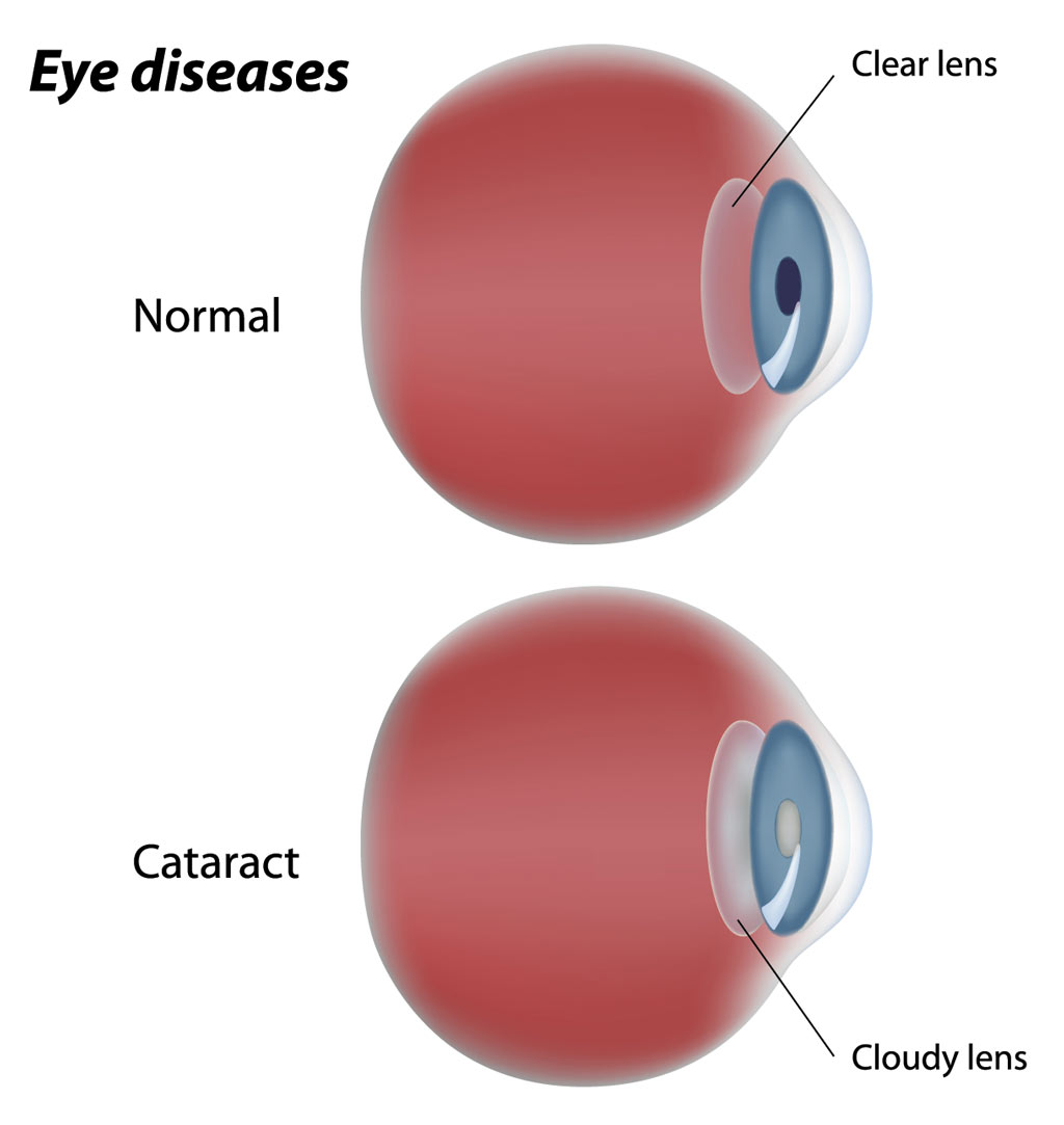 cataract-cloudy-lens