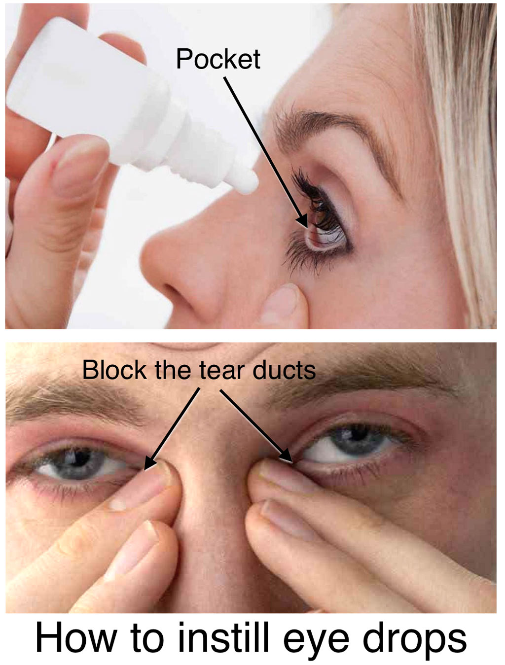 Click for Eyedrop Instructions