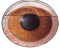 acute-angle-closure-glaucoma