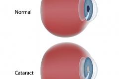 cataract-cloudy-lens