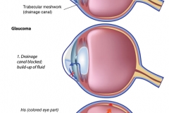 glaucoma-development