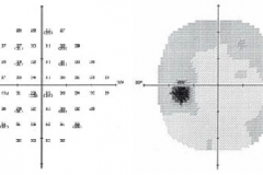 Glaucoma Visual Field