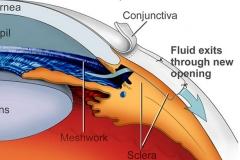 glaucoma-surgery