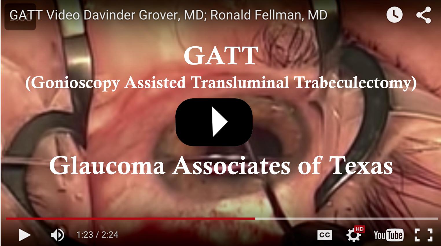 Gallery Glaucoma Associates Of Texas