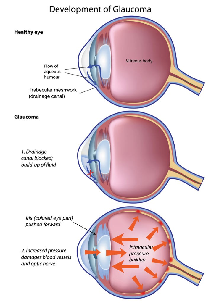 Pupillary-Block Glaucoma)