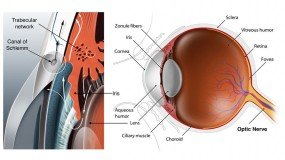 Glaucoma Tests and Diagnosis