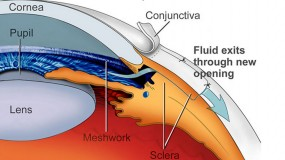 Incisional Glaucoma Surgery