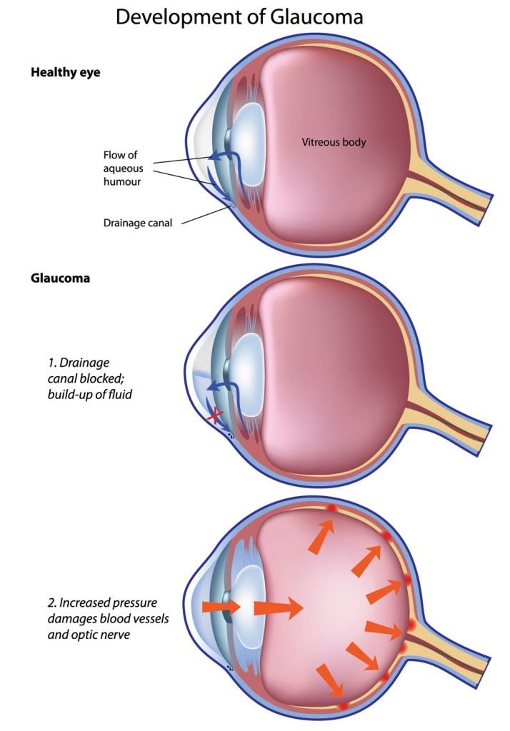 medical, laser and surgical treatments for glaucoma