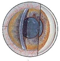 Acute-Angle-Closure-Sequellae