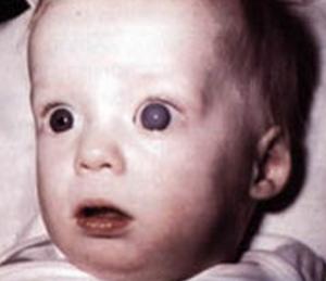Childhood glaucoma congentital