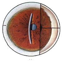 Chronic Angle-Closure Glaucoma