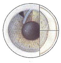 Plateau Iris Syndrome