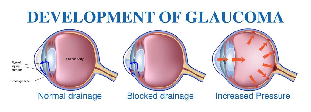 development-of-glaucoma