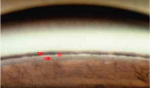 gonioscopy-lens-view