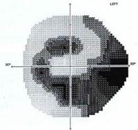 definición de campo visual