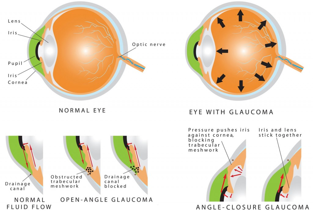 Acute angle-closure glaucoma i and Open Angle Glaucoma (POAG),
