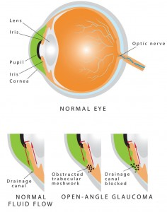 steroid induced glaucoma pdf
