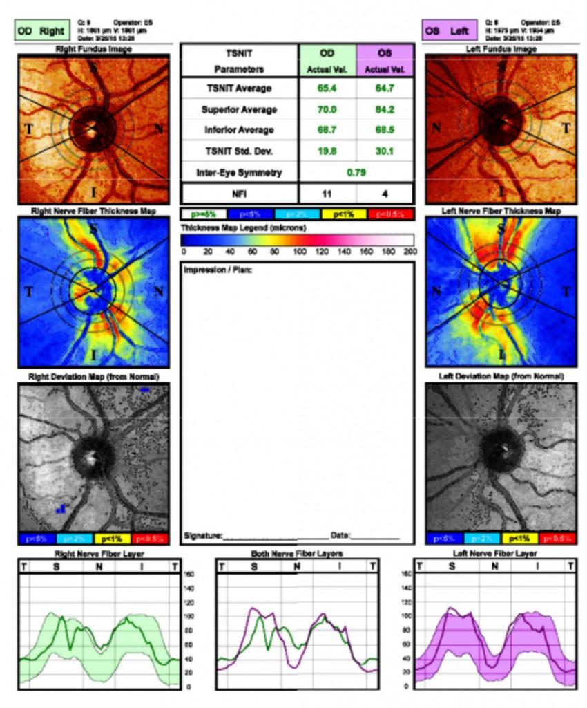 análisis de la fibra nerviosa-2