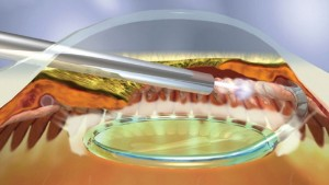 IODE CYCLOPHOTOCOAGULATION (CPC) recommended for patients with refractory glaucoma