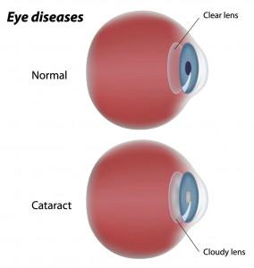 cataract cloudy vision
