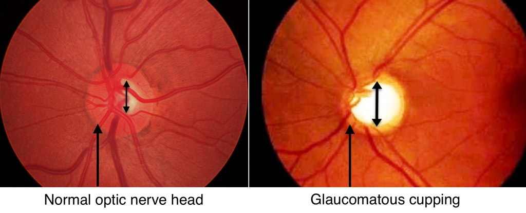 cuppping optic nerve, glaucoma