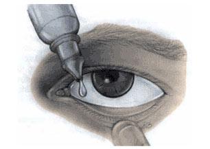 iridotomy-eyedrops