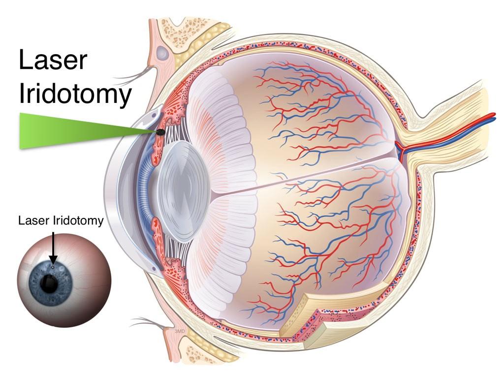 laser iridotomy glaucoma treatment