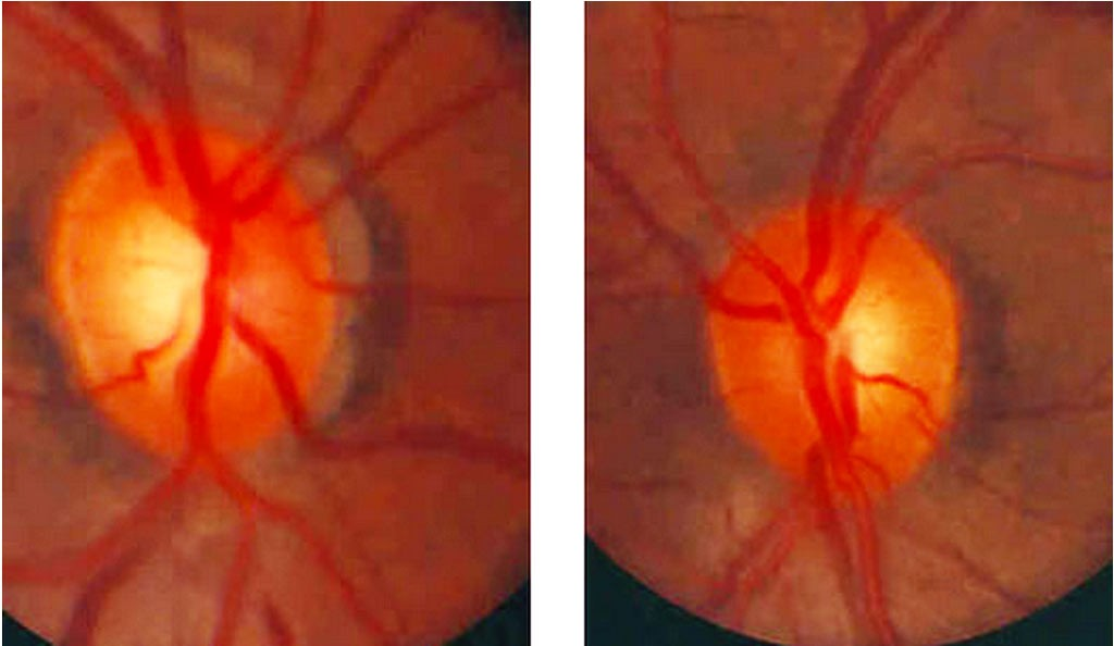 optic nerve cupping