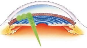 slelective-laser-trabeculosplasty