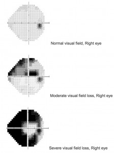 glaucoma and the visual field test