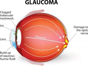 Glaucoma-is-an-eye-disease