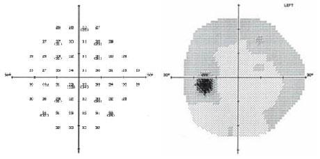 visual field map (bottom) is much darke