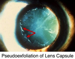 pseudoexfoliation syndrome include iris atrophy