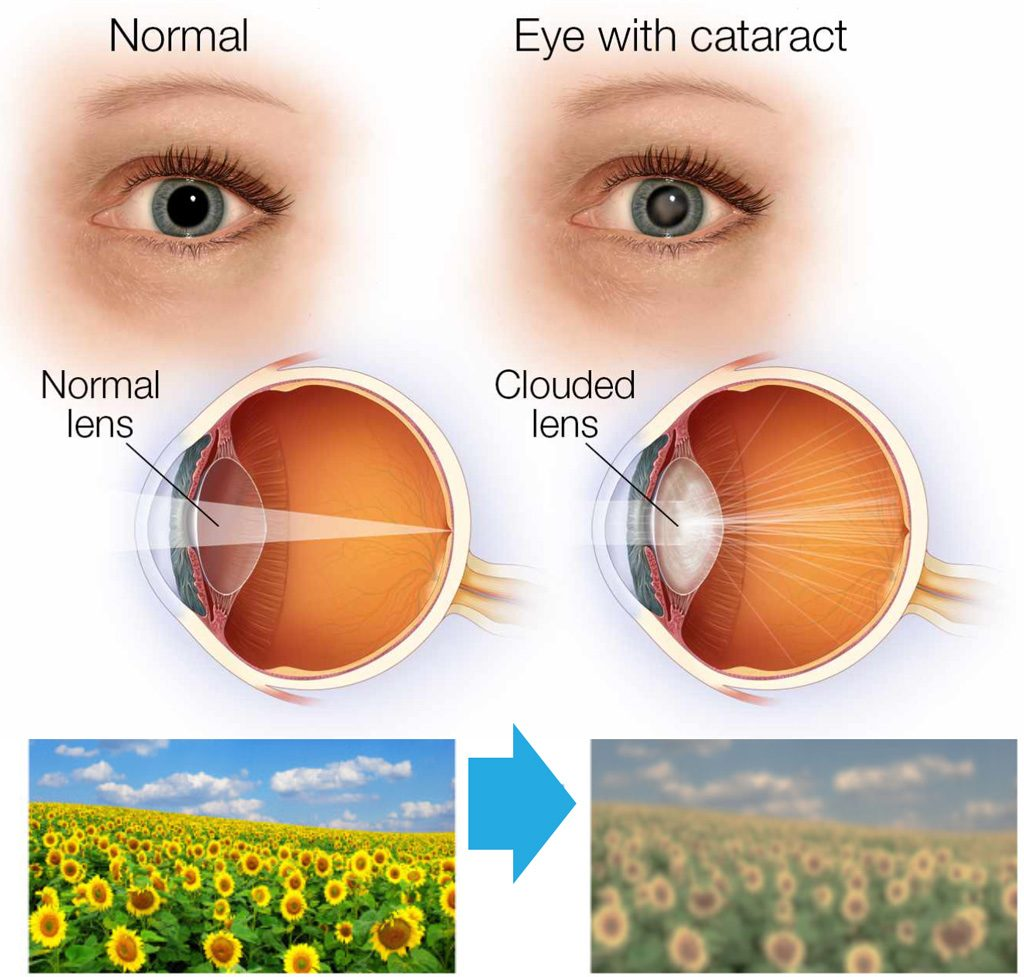 Glaucoma and cataracts for surgery